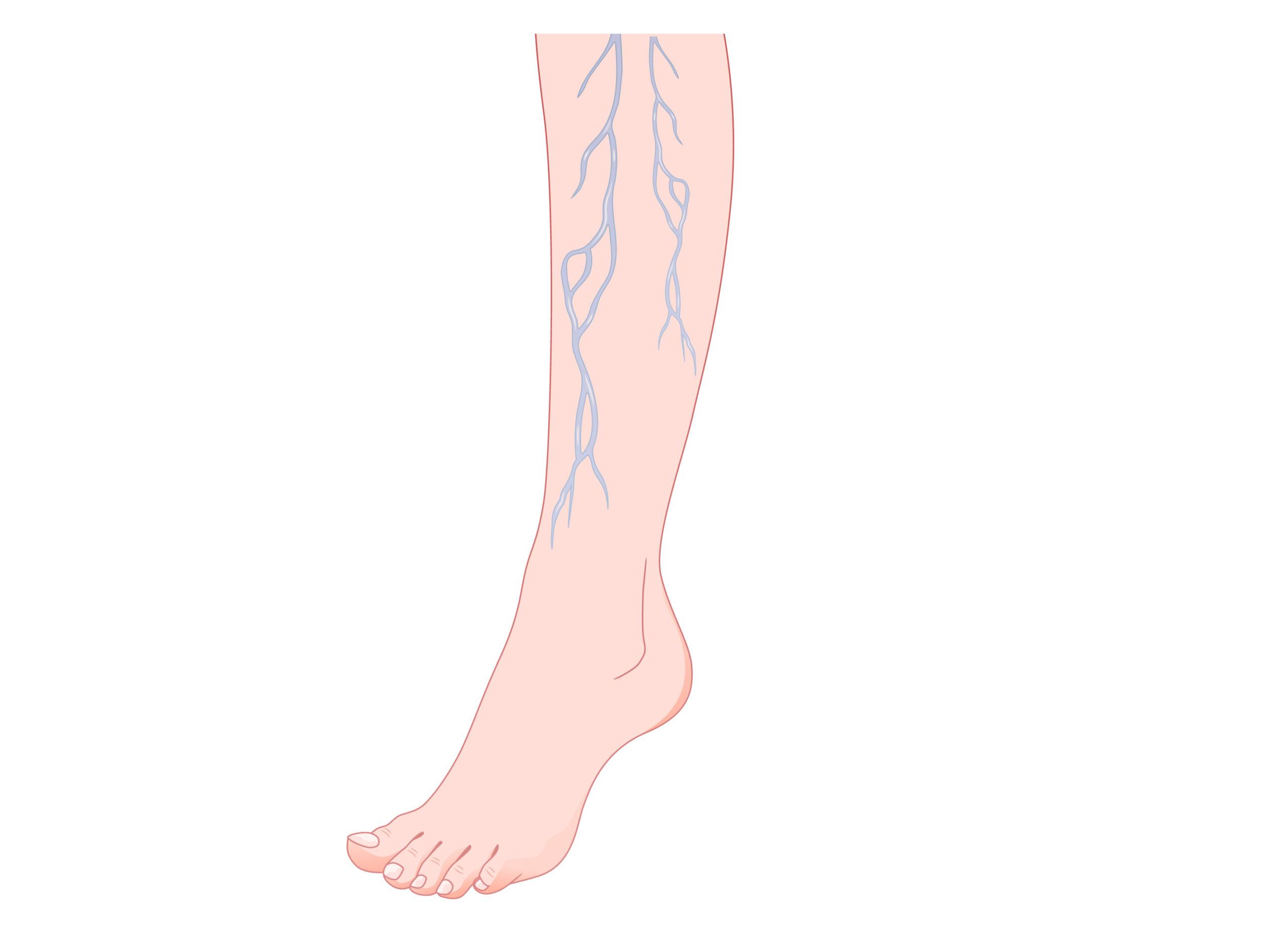 Varicen en piernas